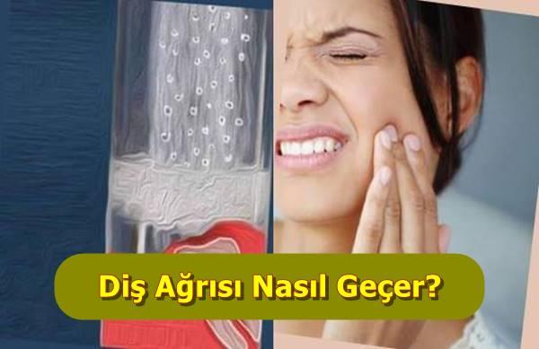 Takma Diş Ağrısı Nasıl Geçer 5 Doğal Yöntem